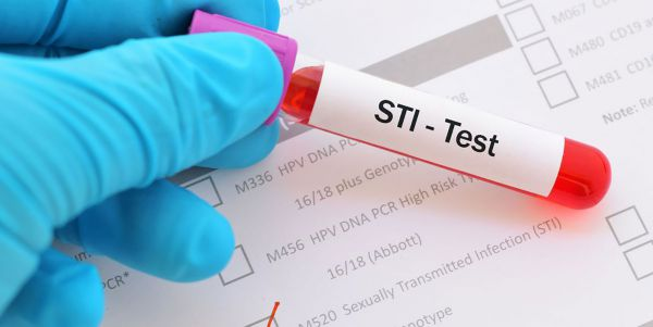 Khi nào nên thực hiện sàng lọc bệnh lây qua đường tình dục?